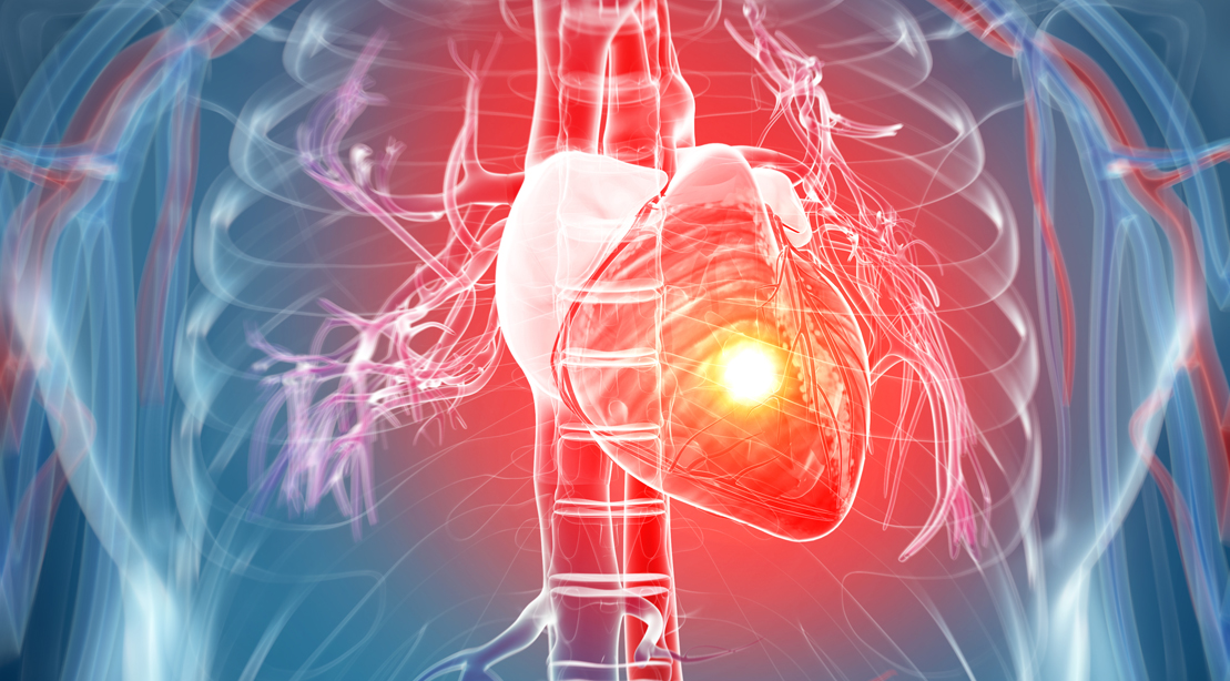 Study: Exercising Angry Triples Risk of Heart Attack