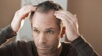 hair-loss-thin