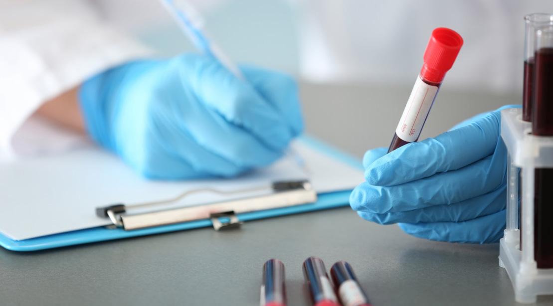 Test-Tube-Blood-Exam