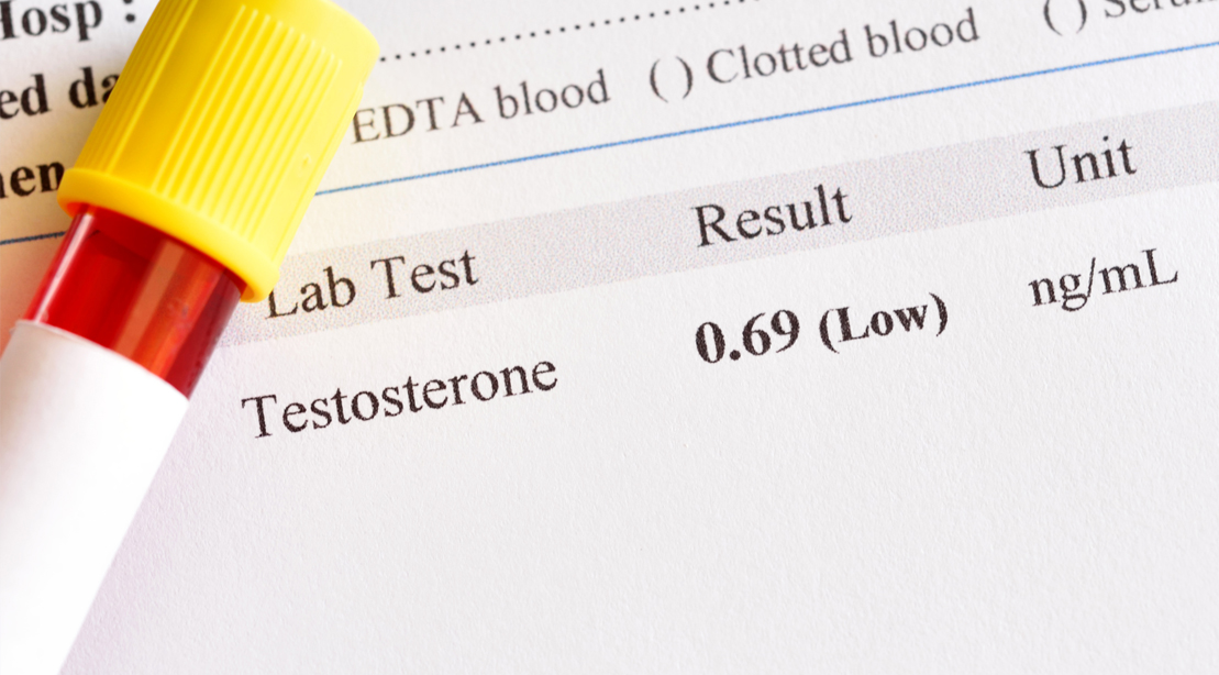Testosterone-Blood-Test-Results-Low-Hormone