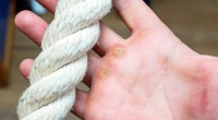 Calloused Hands Holding A Rope