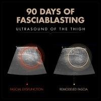 90day Ultrasound